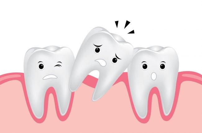 O que fazer para prevenir e evitar a queda dos dentes?
