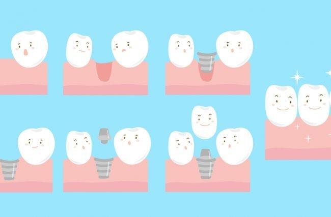 Rejeição de implantes dentários: acontece?