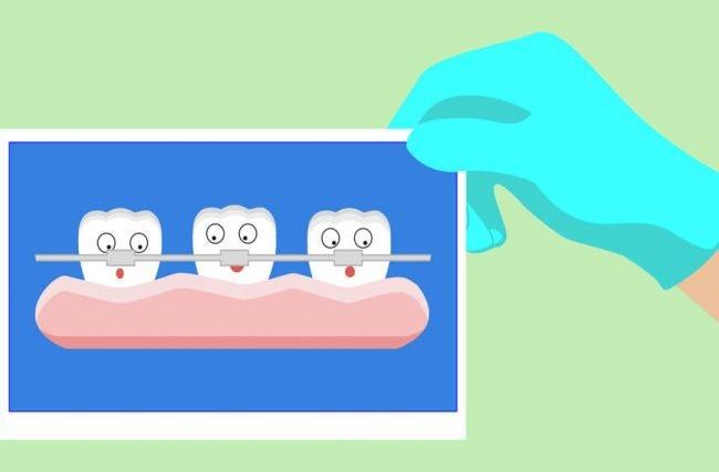 Como saber se você precisa de um aparelho dental?
