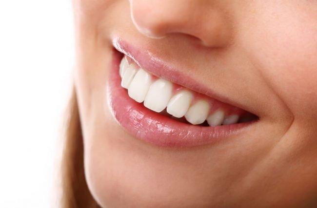 Lentes de contato dental: o que é, quais são os benefícios e como é feito?